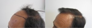 los angeles hair transplant