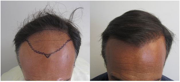 Apologise, No sex day after hair transplant not