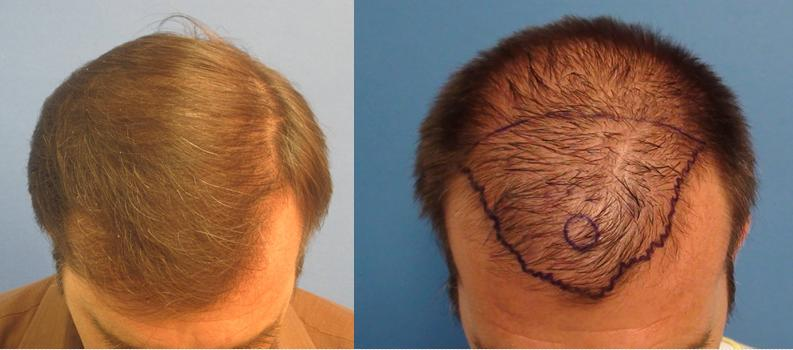 before-and-after-hair-transplant-los-angeles