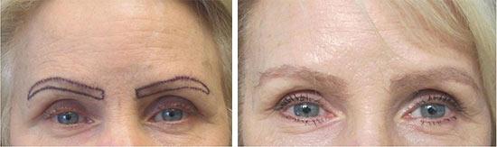 eyebrow-transplant-los-angeles