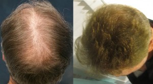 los angeles hair restoration specialists