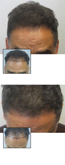 beverly hilla hair transplant