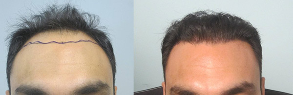 hair-transplant-before-and-after-photos
