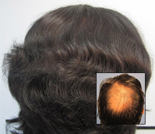 hair-transplant-front-page2