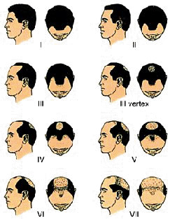 5 Categories of Hair Loss