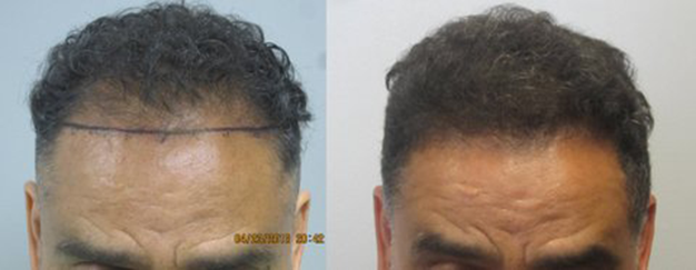 hair-transplant-los-angeles
