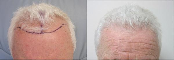 hair-transplant-los-angeles cost
