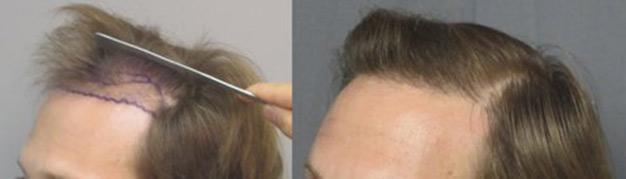 hair-transplant-east-los-angeles