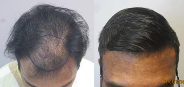 hair-transplant-LA
