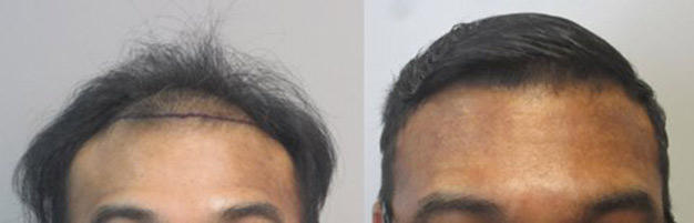 hair-transplant-los-angeles-hair restoration