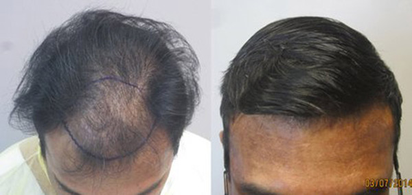 hair-transplant-los-angeles7