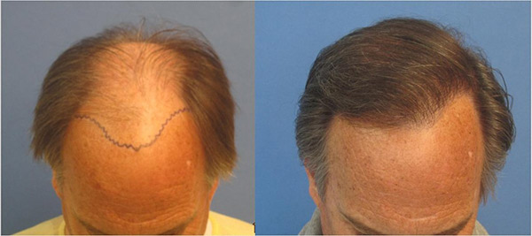 Consider, No sex day after hair transplant
