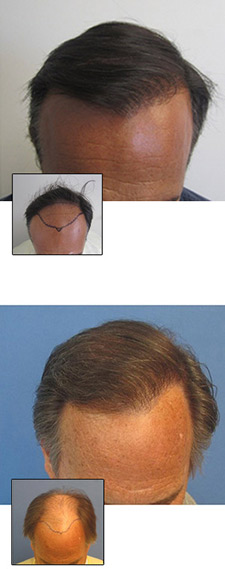 mens hair transplant los angeles