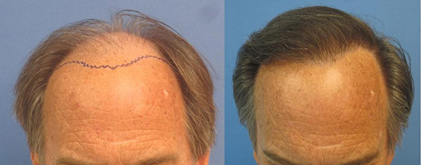 Hair Transplants Los Angeles