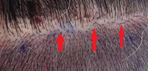los-angeles-hair-restoration