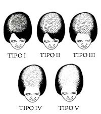 Womens Hair Restoration Los Angeles