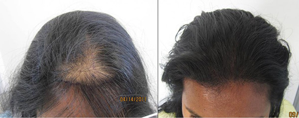 womens-hair-restoration-la12