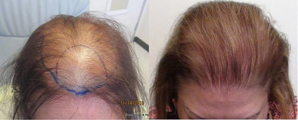 womens-hair-restoration-la2