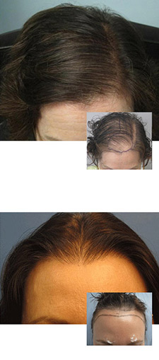 Womens Hair Transplant Los Angeles