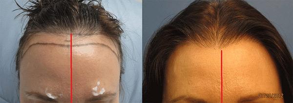 womens hair transplant hawaii