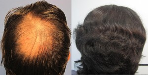 Best hair transplant doctor los angeles