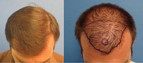 hair-transplatation-los-angeles