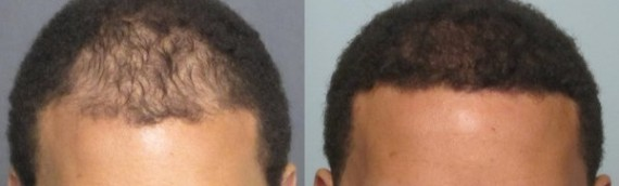 Hairline Transplant Grafts