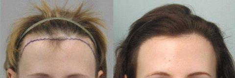 hair transplant beverly hills