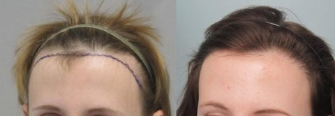 los angeles womens hair transplant