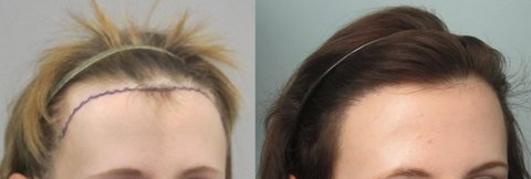 women hair transplant los angeles