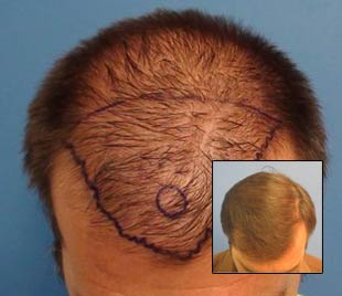 hair transplant specialist los angeles