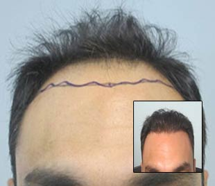 los angeles hair transplant specialist